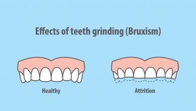 درمان های خانگی دندان قروچه