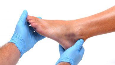 چگونه می توان پیچ خوردگی و کشیدگی مفاصل و عضلات را درمان کرد؟