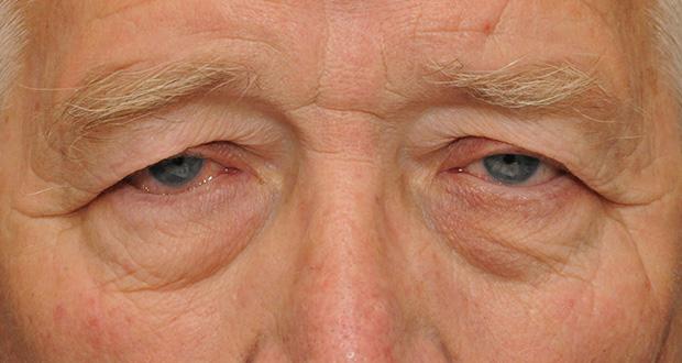 چرا دچار افتادگی پلک می شویم؟