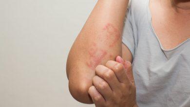 انواع بیماری های آلرژی