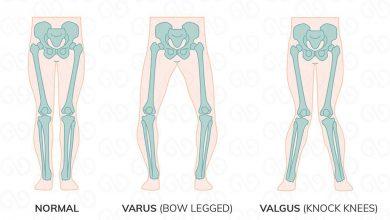 علل بیماری پای پرانتزی چیست؟