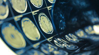 مغز خانم ها 3 سال جوانتر از مغز آقایان