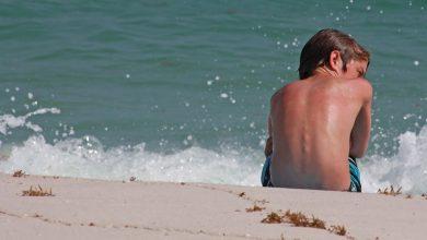 تابستان و احتمال ابتلا به سرطان پوست