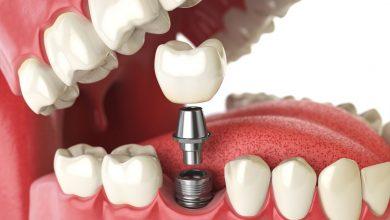 چرا باید ایمپلنت دندانی بگذاریم؟
